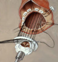 Valve Replacement Being Sutured Into Heart - Diagram