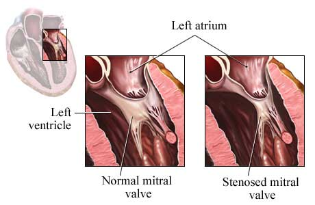 Left Ventricle Showing Mitral Valve Disorder