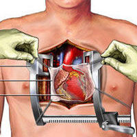 Heart sternum healing after surgery patient discussion ccuart Choice Image