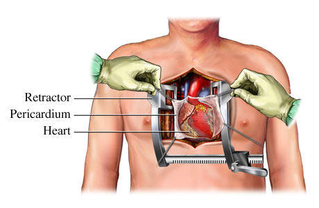 Heart sternum healing after surgery patient discussion open heart surgery diagram with chest retracted ccuart Images