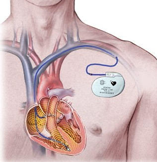 Drawing Of Pacemaker Implanted After Heart Valve Surgery