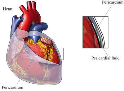 Drawing Of The Pericardium Before & After Heart Surgery