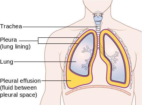 Pleural Effusion After Heart Surgery