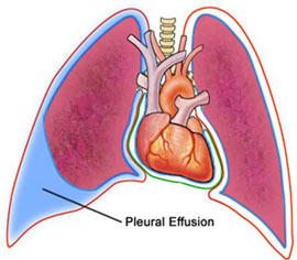 Pleural Effusion After Open Heart Surgery