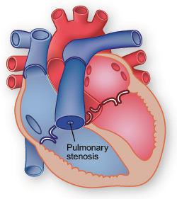 Pulmonary Stenosis Diagram
