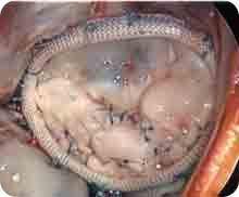 Pulmonary Valve Repair with Annuloplasty Ring