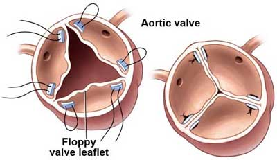 Aortic Valve Repair Diagram for Aortic Regurgitation