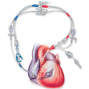 Retrograde Heart Cardioplegia