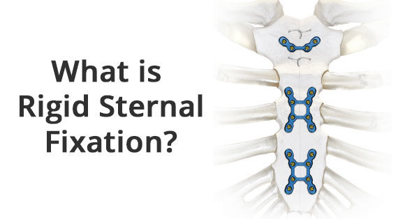 Rigid Sternal Fixation: Top 6 Facts for Patients