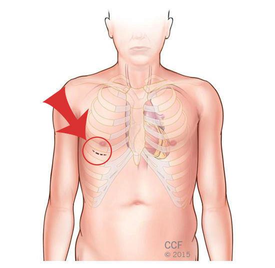 Minimally Invasive Mitral Valve Surgery