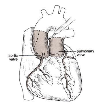 Ross Procedure Diagram