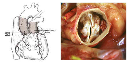 The Ross Procedure & Bicuspid Valve