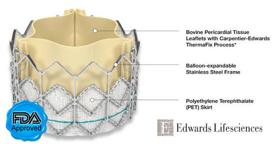 SAPIEN Heart Valve With Features & FDA Seal