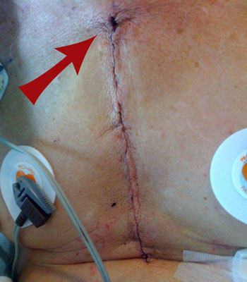 Top Incision Bump After Heart Surgery - Patient Picture