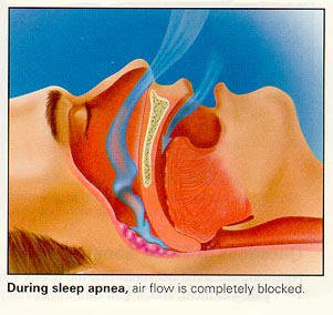 Sleep Apnea Heart Strain On Patients With Aortic Valve Stenosis