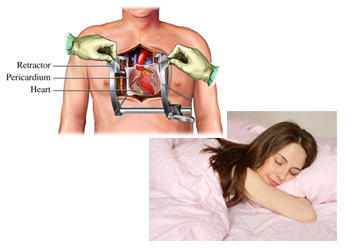 Sleep After Open Heart Valve Surgery On Your Stomach (Tummy)