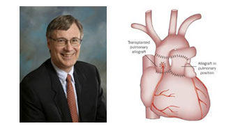 Dr. Paul Stelzer With Ross Procedure Diagram