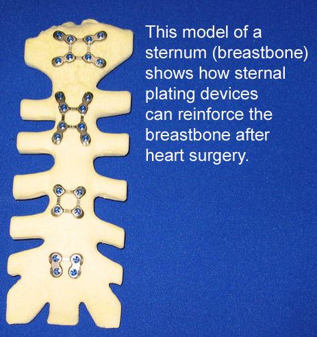 Sternal Plating After Median Sternotomy Heart Surgery