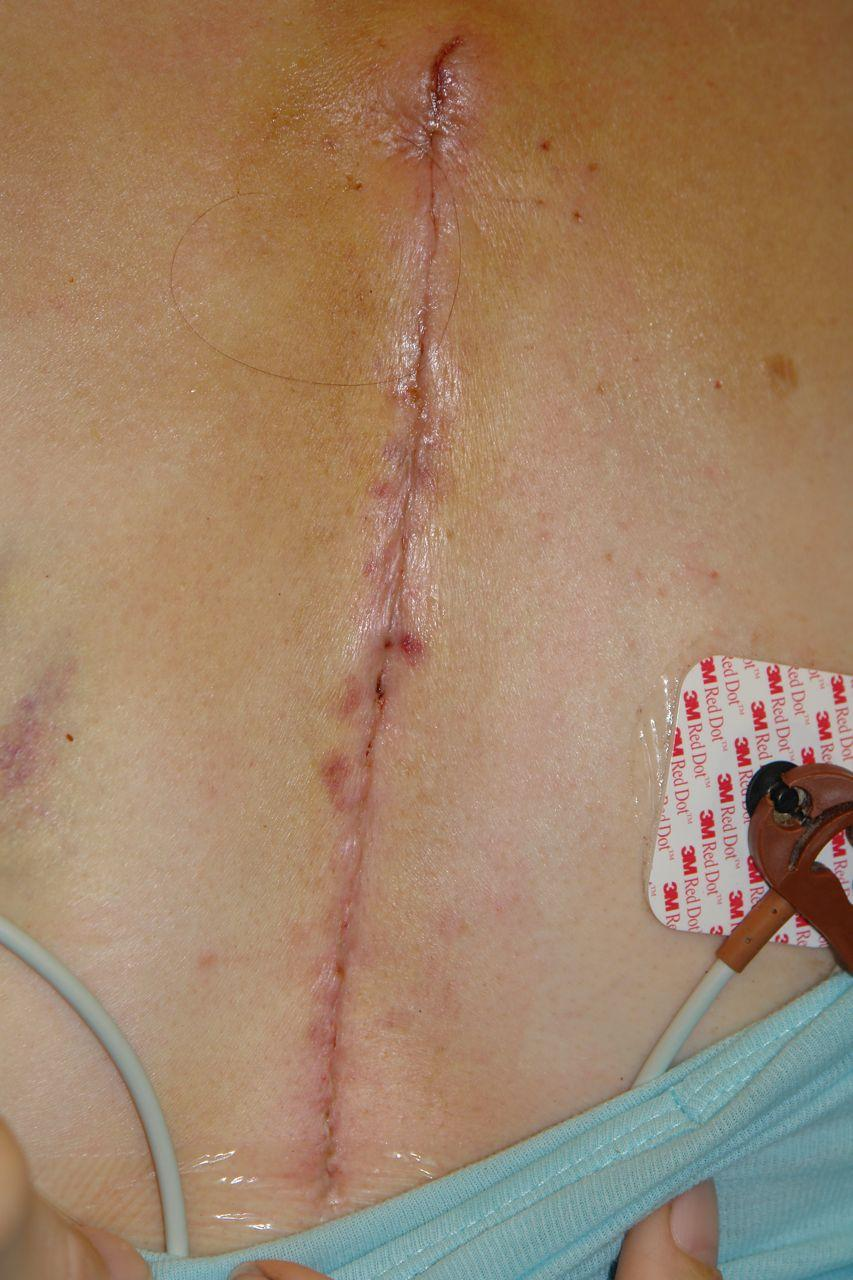Female Sternum Incision Scar