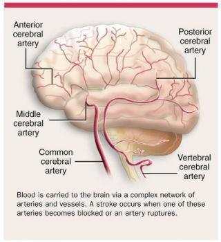 Stroke Risk Associated With Cardiac Surgery