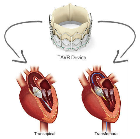 TAVR-Transapical-Transfemoral-Approach