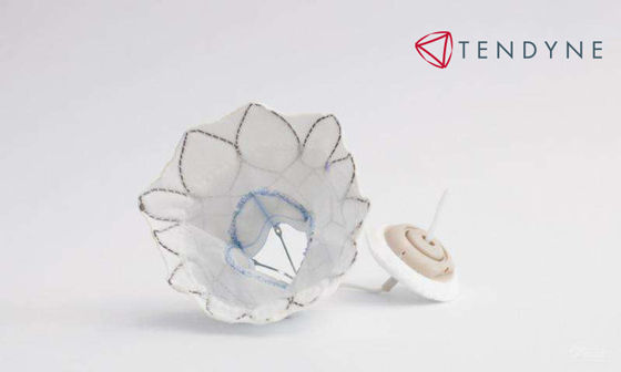 New Tendyne Transcatheter Mitral Valve Replacement Device