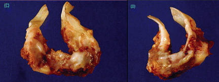 Picture Of Unicuspid Heart Valves