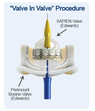 Valve In Valve Aortic Valve Procedure Diagram