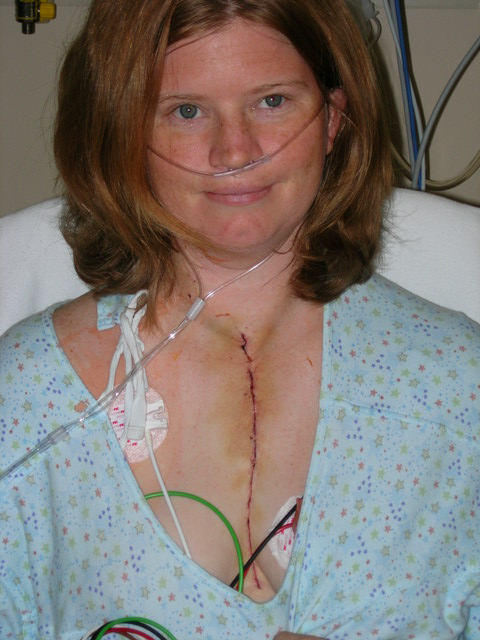 Woman With Heart Surgery Scar After Operation In The Hospital