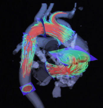 4D-MRI Picture of The Heart