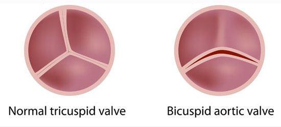 Normal and Bicuspid Bicuspid Aortic Valve