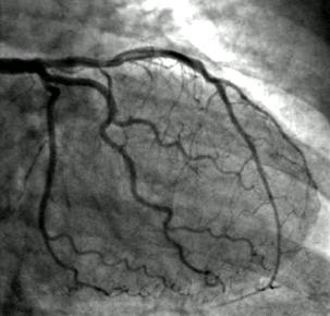 Angiogram Picture
