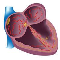 Atrial Fibrillation & Heart Valve Surgery
