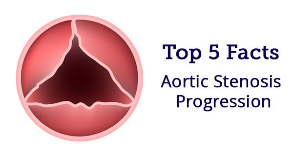 Facts About Aortic Stenosis