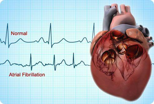 Atrial Fibrillation & Normal Heart Rhythm