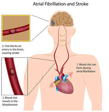 Diagram Showing The Connection Between Atrial Fibrillation & Stroke