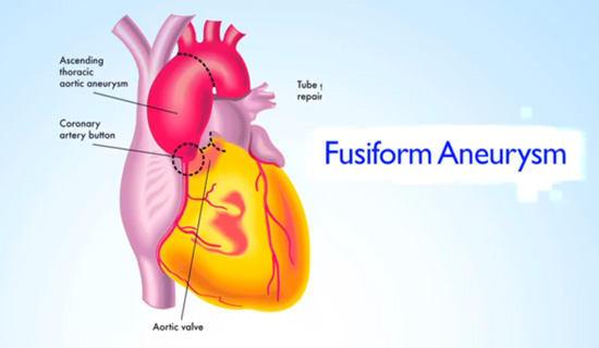 Fusiform Aneurysm Shape