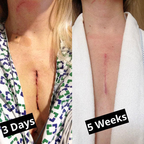 Picture of Heart Surgery Incision Healing
