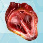 Heart Valve Trivia