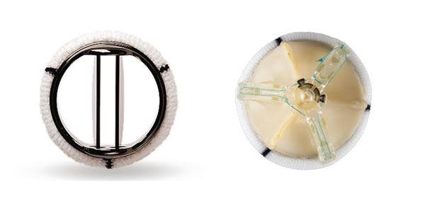 mechanical-tissue-valve-st-jude