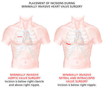 mini-incisions-valve-surgery