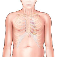 MiniSternotomy-Aortic-Valve