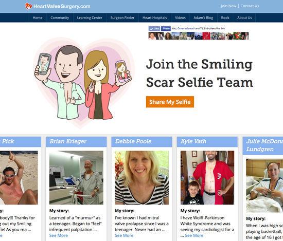 Smiling Scar Selfie App