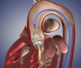 TAVR Sapien by Medtronic