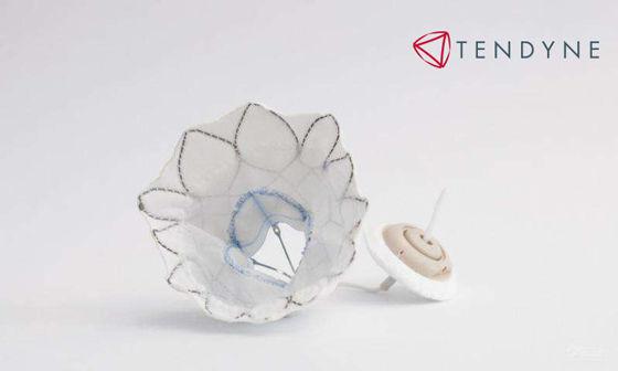 Tendyne Transcatheter Mitral Valve Replacement