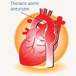 Thoracic Aortic Aneurysm Diagram