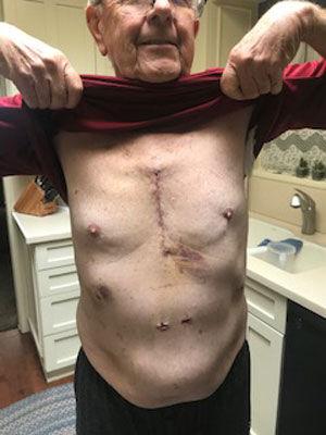 Heart Valve Patient Scar (Median Sternotomy)
