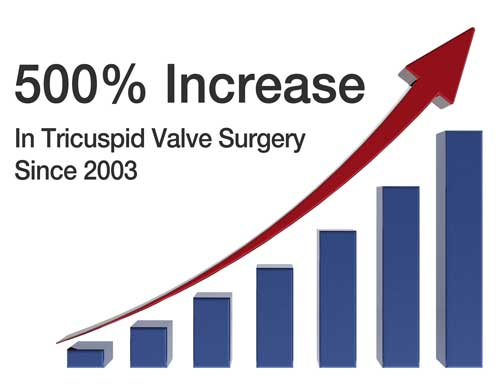 Tricuspid Valve Surgery Increase During Past 10 Years