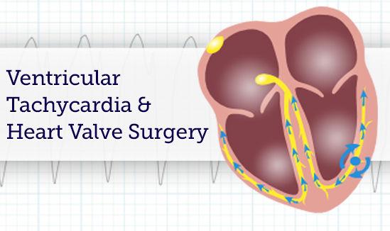 Ventricular Tachycardia and Heart Valve Surgery