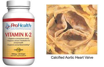Vitamin K2 & Calcifed Heart Valve Stenosis